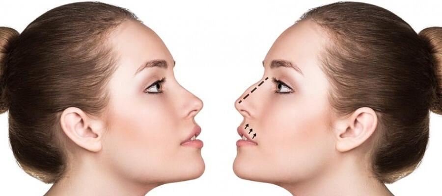 E' l'intervento chirurgico per modellare la forma del naso.
