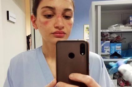 Giornata internazionale dell'infermiere - infermiera con il viso rovinato