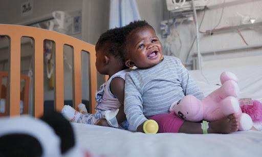 le gemelle prima dell'intervento