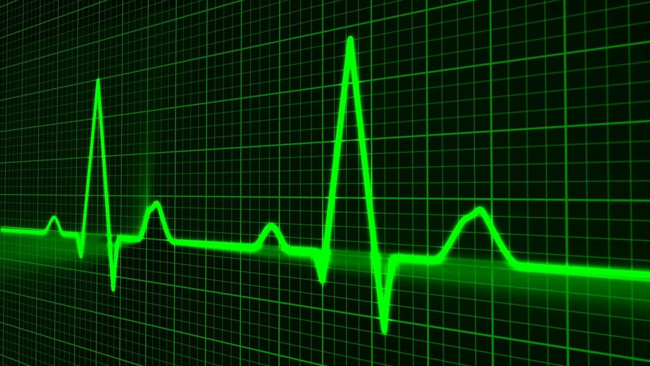 picchi di un Elettrocardiogramma fatto con lo smartwatch