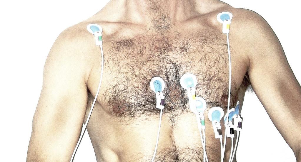 un ECG con elettrodi su un torace di un uomo fatto con smartwatch