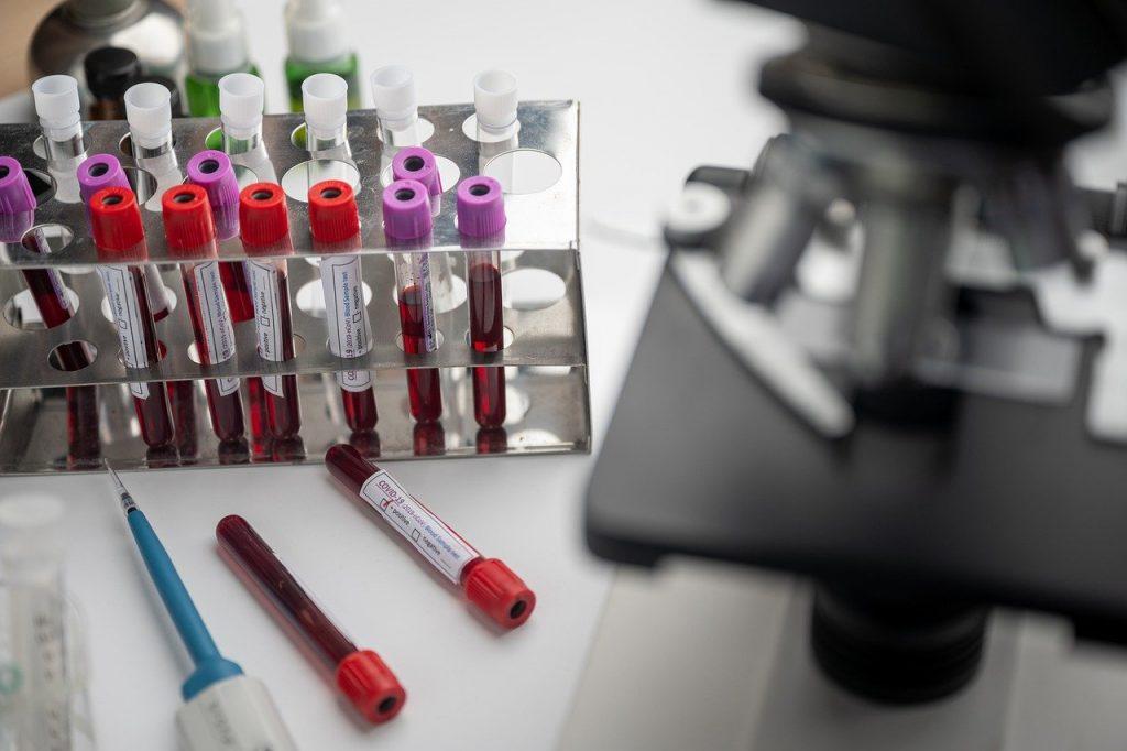 Sperimentazione, sangue