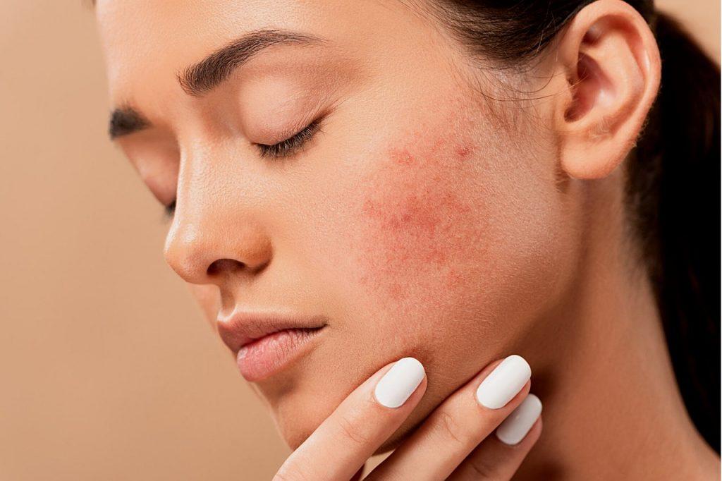 Covid-19 e la pelle- un viso con irritazione